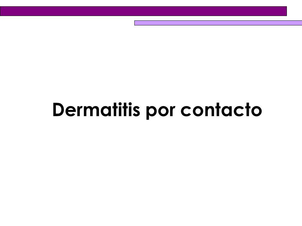 ¿Cuáles son las causas de la dermatitis por contacto alérgica.