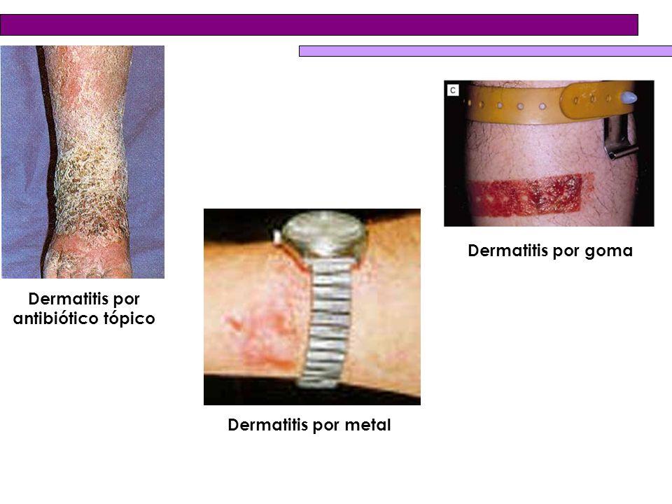 Dermatitis por antibiótico tópico Dermatitis por metal Dermatitis por goma