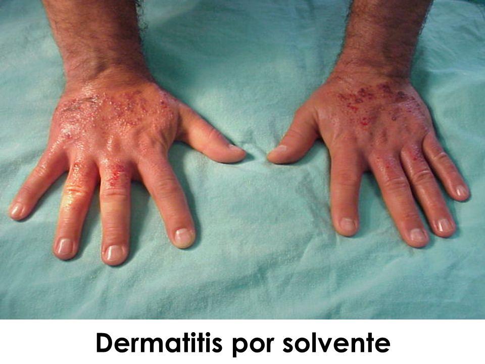 Dermatitis por solvente