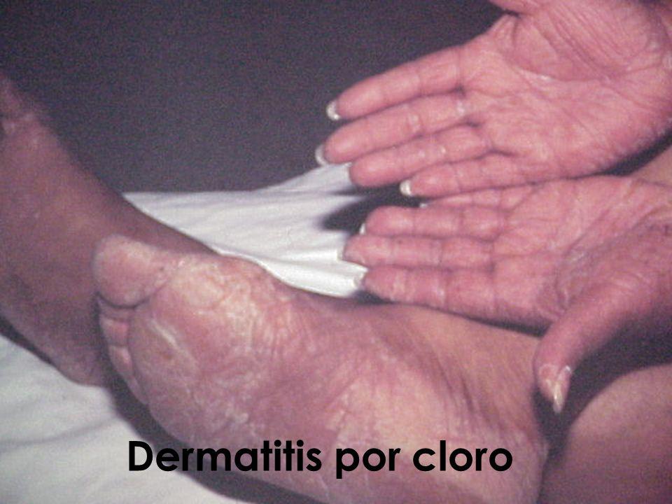 Dermatitis por cloro