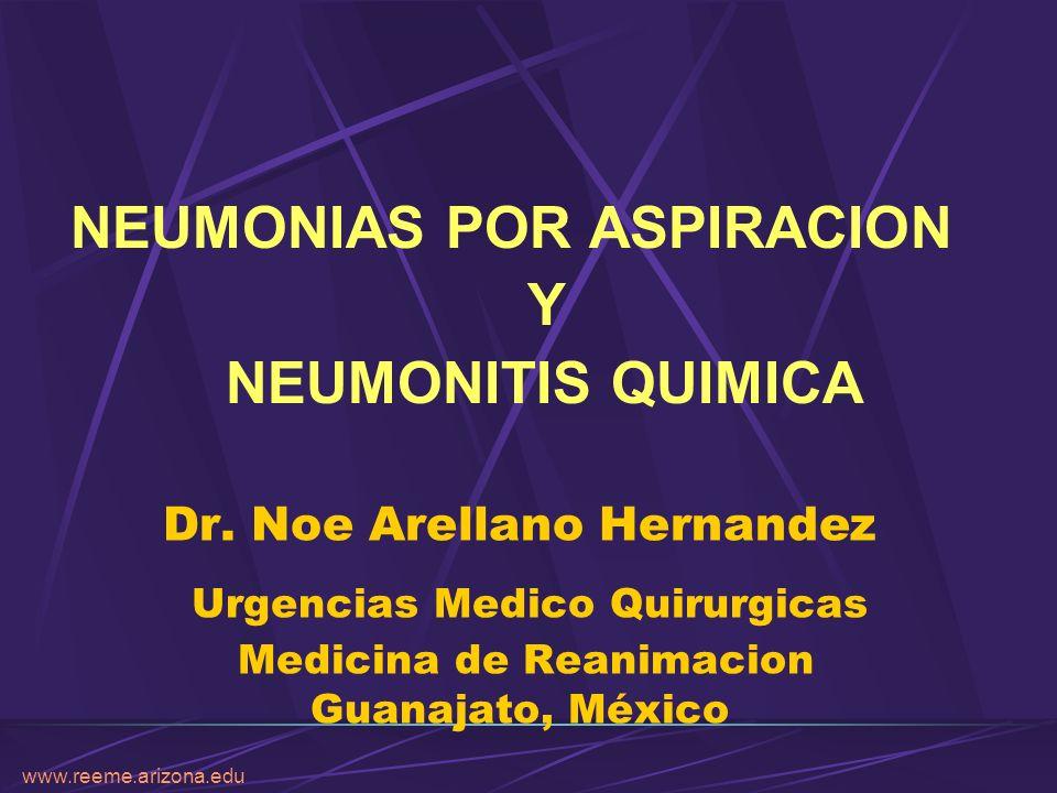 www.reeme.arizona.edu URGENCIAS MEDICO QUIRURGICAS NEUMONIAS POR ASPIRACION - Se observó que con pH gástrico por debajo de 2.5 y con un volumen aspirado mayor de 0.3 ml/kg de peso fue suficiente para encontrarse cambios a nivel pulmonar.
