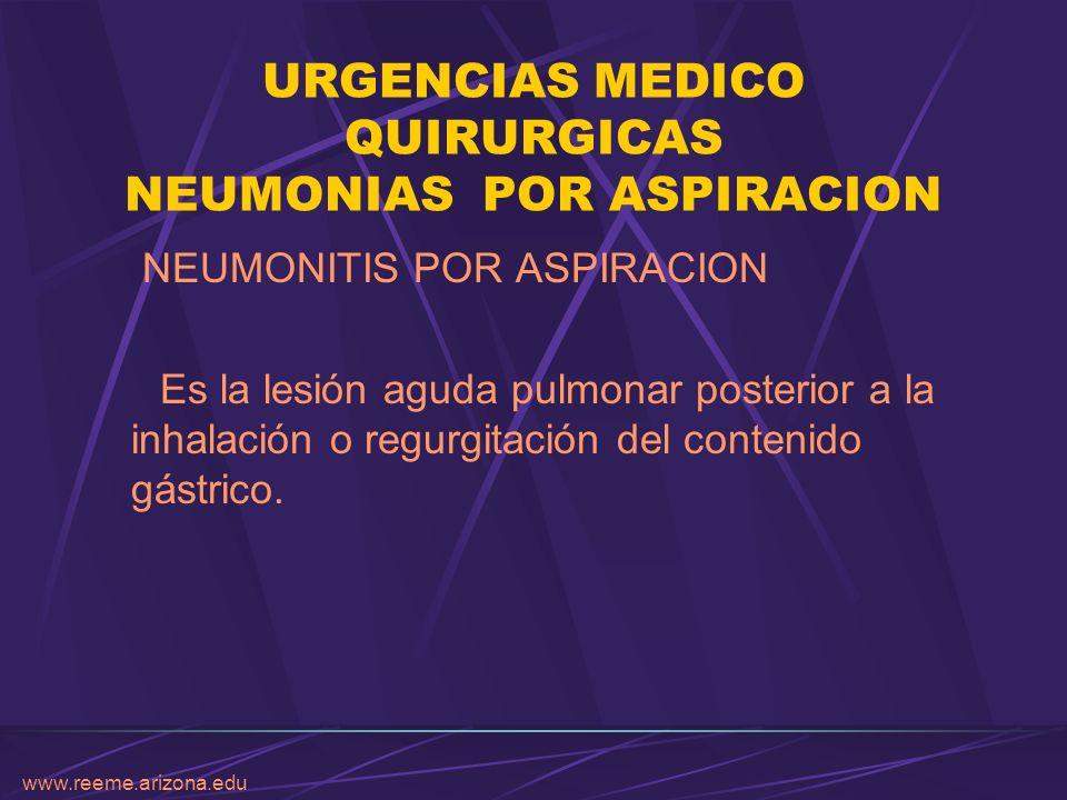 URGENCIAS MEDICO QUIRURGICAS NEUMONIAS POR ASPIRACION NEUMONITIS POR ASPIRACION Es la lesión aguda pulmonar posterior a la inhalación o regurgitación