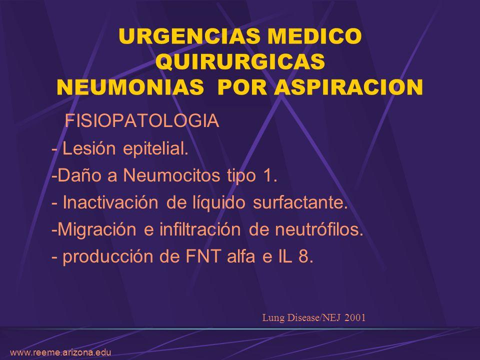 www.reeme.arizona.edu URGENCIAS MEDICO QUIRURGICAS NEUMONIAS POR ASPIRACION FISIOPATOLOGIA - Lesión epitelial. -Daño a Neumocitos tipo 1. - Inactivaci