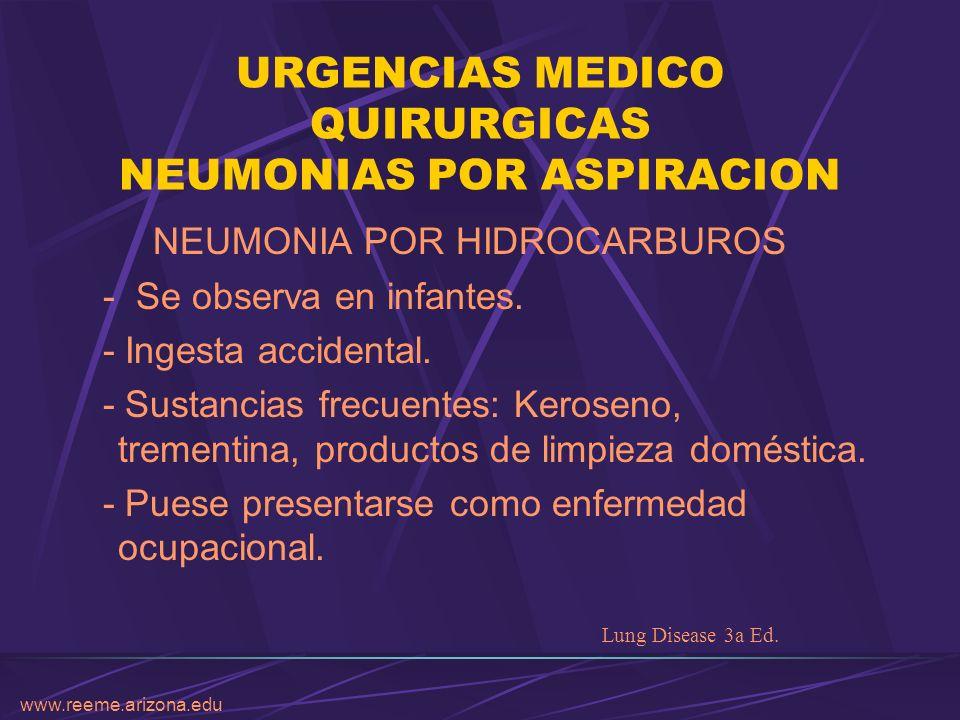 www.reeme.arizona.edu URGENCIAS MEDICO QUIRURGICAS NEUMONIAS POR ASPIRACION NEUMONIA POR HIDROCARBUROS - Se observa en infantes. - Ingesta accidental.