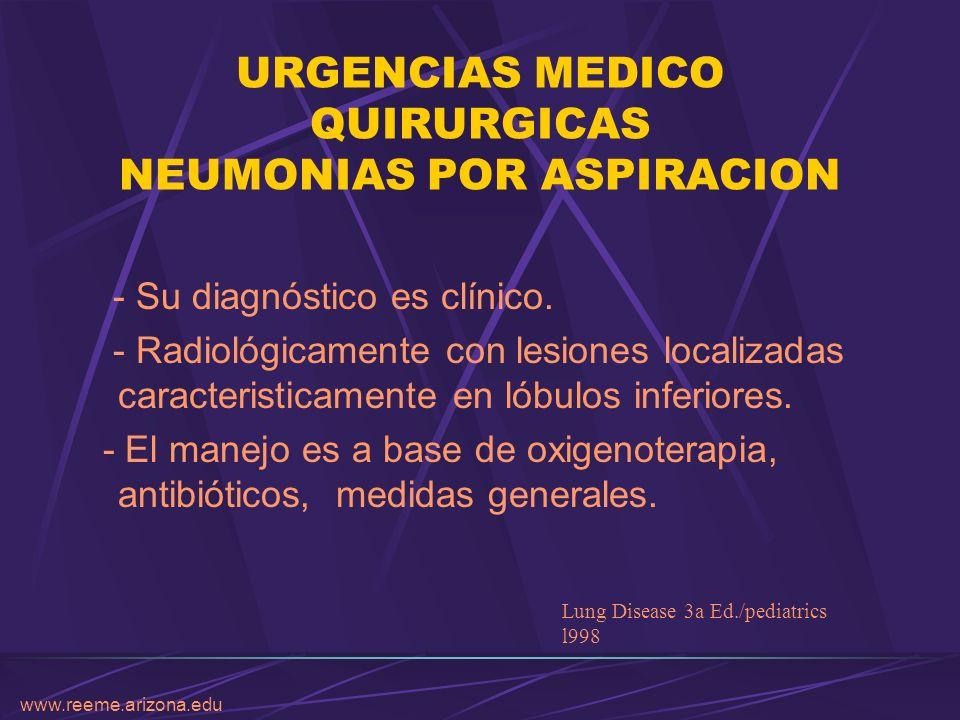 www.reeme.arizona.edu URGENCIAS MEDICO QUIRURGICAS NEUMONIAS POR ASPIRACION - Su diagnóstico es clínico. - Radiológicamente con lesiones localizadas c