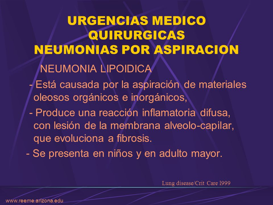 www.reeme.arizona.edu URGENCIAS MEDICO QUIRURGICAS NEUMONIAS POR ASPIRACION NEUMONIA LIPOIDICA - Está causada por la aspiración de materiales oleosos