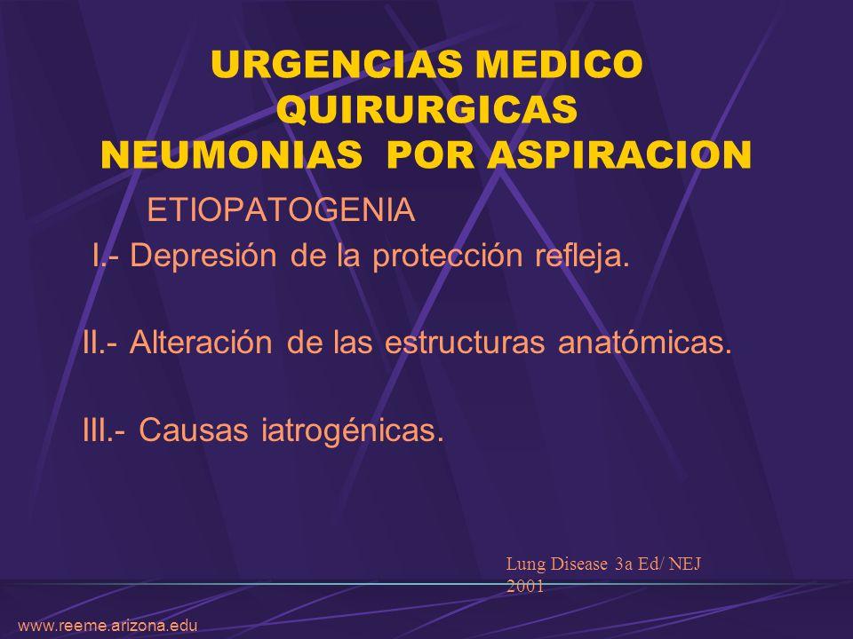 www.reeme.arizona.edu URGENCIAS MEDICO QUIRURGICAS NEUMONIAS POR ASPIRACION ETIOPATOGENIA I.- Depresión de la protección refleja. II.- Alteración de l