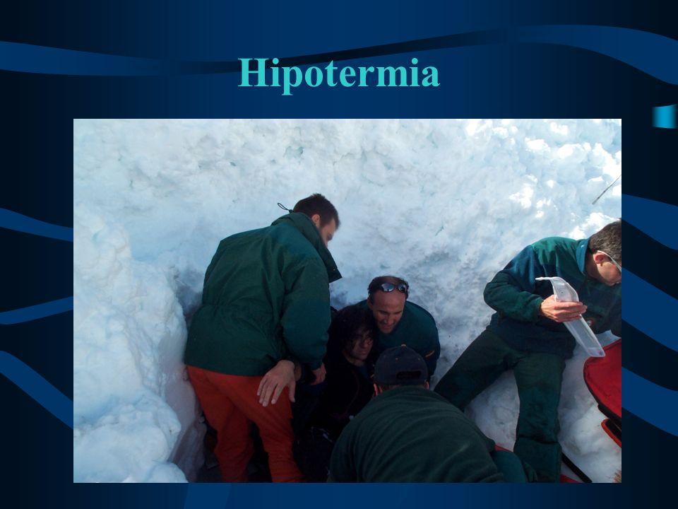 Hipotermia grave: Tratamiento (2) Protección medioambiental: –Crear un refugio: cortavientos, tienda, igloo...