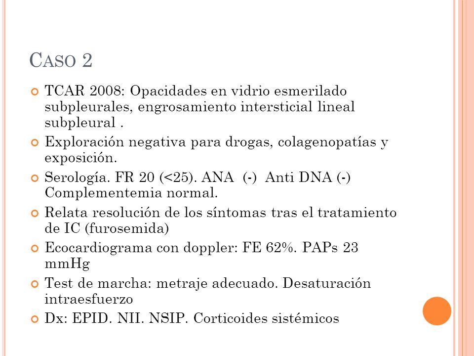 C ASO 2 TCAR 2008: Opacidades en vidrio esmerilado subpleurales, engrosamiento intersticial lineal subpleural.