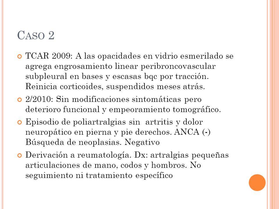 C ASO 2 TCAR 2009: A las opacidades en vidrio esmerilado se agrega engrosamiento linear peribroncovascular subpleural en bases y escasas bqc por tracción.