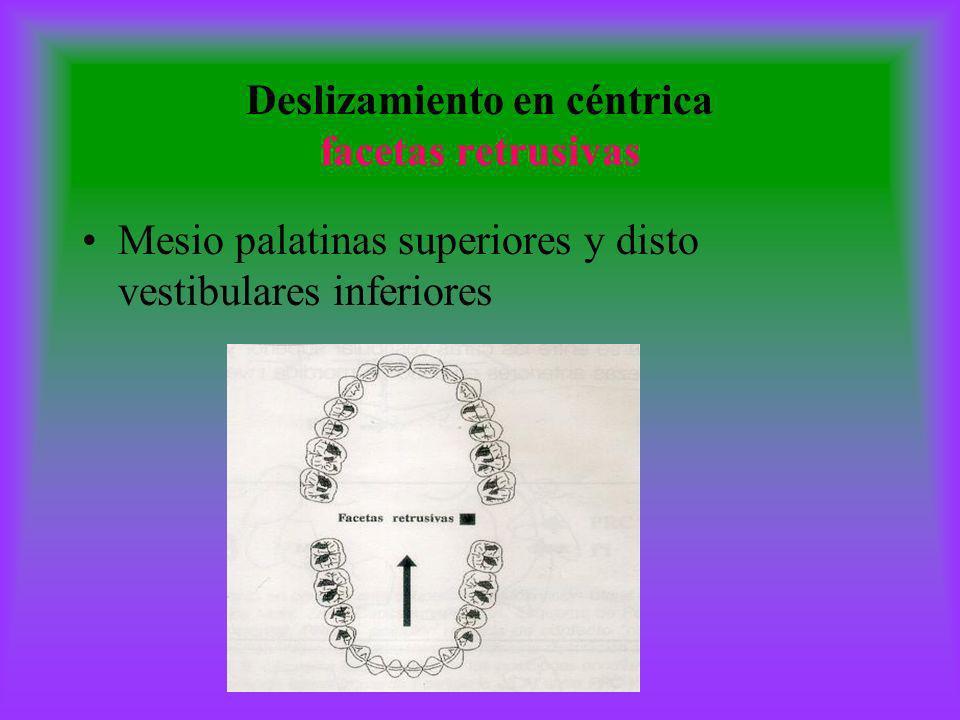 Deslizamiento en céntrica facetas retrusivas Mesio palatinas superiores y disto vestibulares inferiores