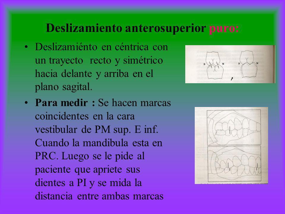 Deslizamiento anterosuperior puro: Deslizamiénto en céntrica con un trayecto recto y simétrico hacia delante y arriba en el plano sagital. Para medir