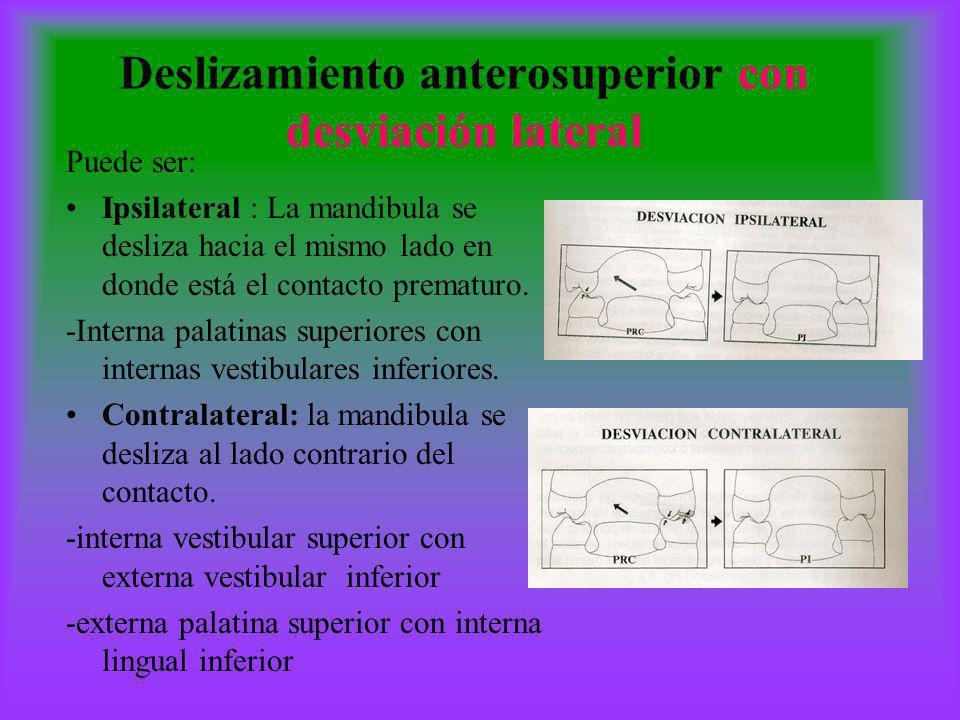 Deslizamiento anterosuperior con desviación lateral Puede ser: Ipsilateral : La mandibula se desliza hacia el mismo lado en donde está el contacto pre