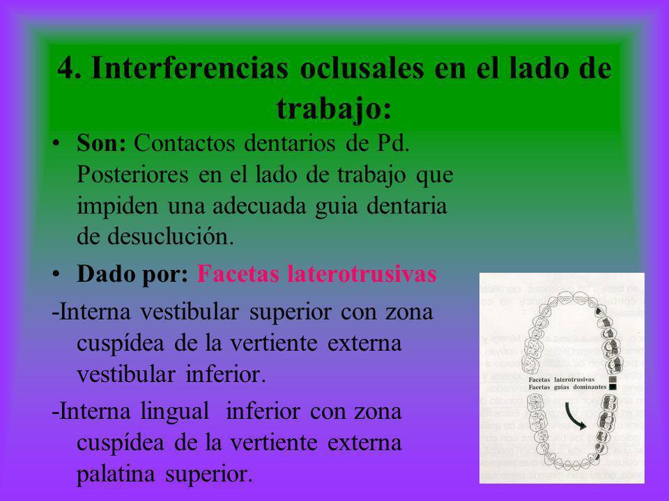 4. Interferencias oclusales en el lado de trabajo: Son: Contactos dentarios de Pd. Posteriores en el lado de trabajo que impiden una adecuada guia den