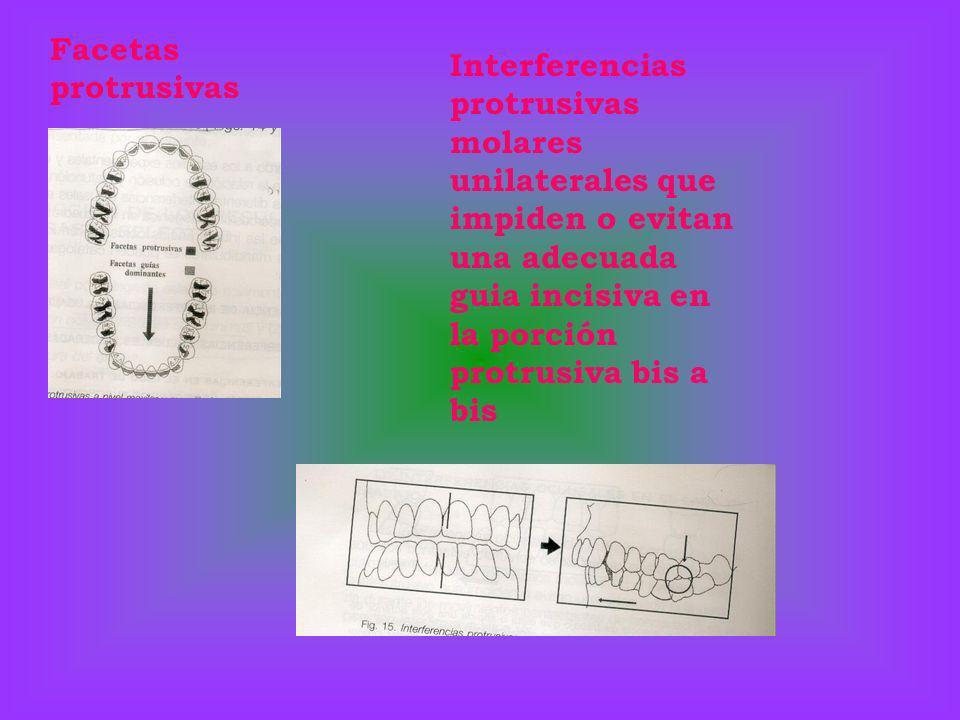 Facetas protrusivas Interferencias protrusivas molares unilaterales que impiden o evitan una adecuada guia incisiva en la porción protrusiva bis a bis