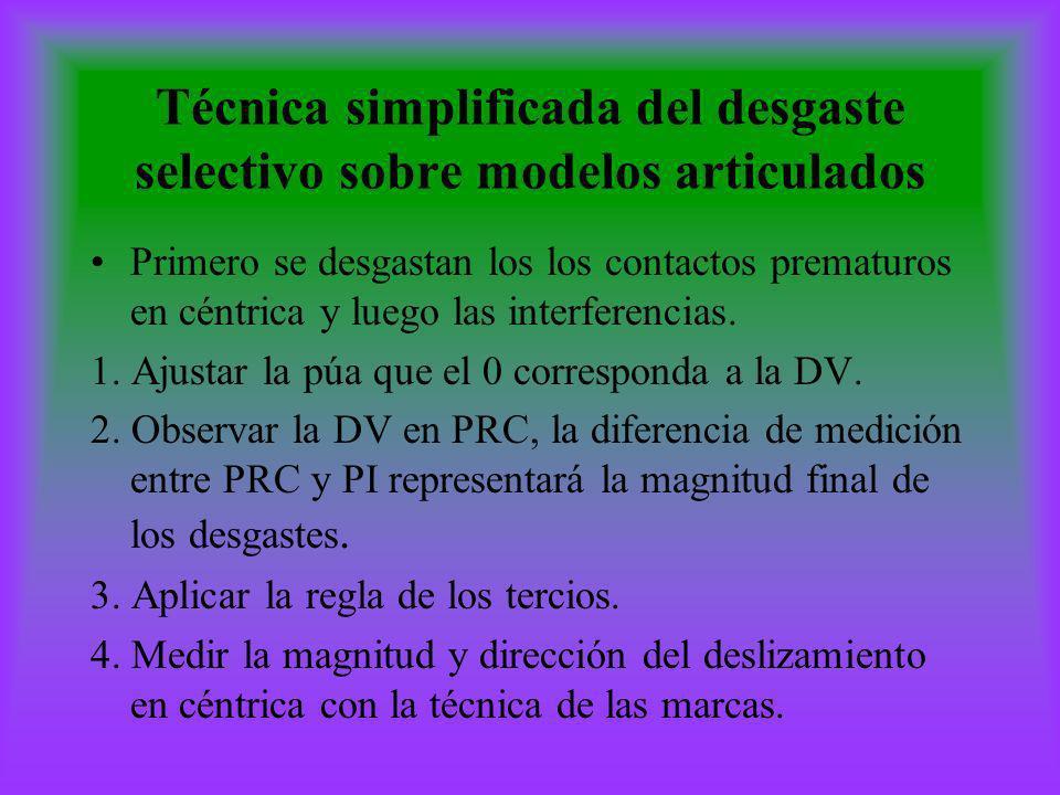 Técnica simplificada del desgaste selectivo sobre modelos articulados Primero se desgastan los los contactos prematuros en céntrica y luego las interf
