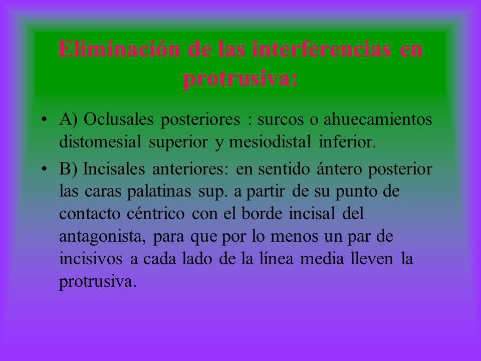 Eliminación de las interferencias en protrusiva: A) Oclusales posteriores : surcos o ahuecamientos distomesial superior y mesiodistal inferior. B) Inc