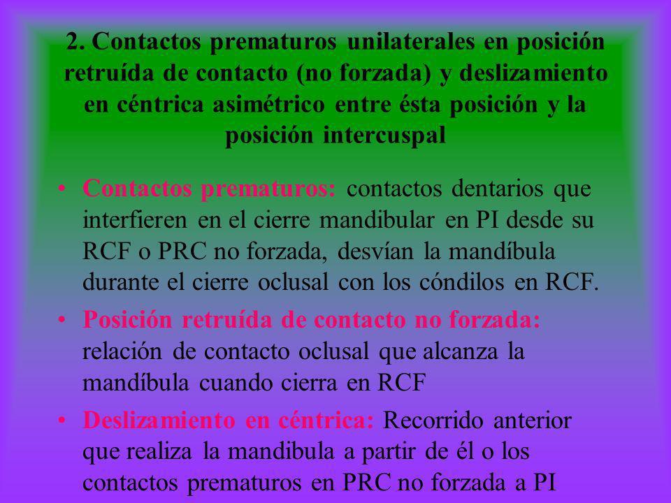 2. Contactos prematuros unilaterales en posición retruída de contacto (no forzada) y deslizamiento en céntrica asimétrico entre ésta posición y la pos