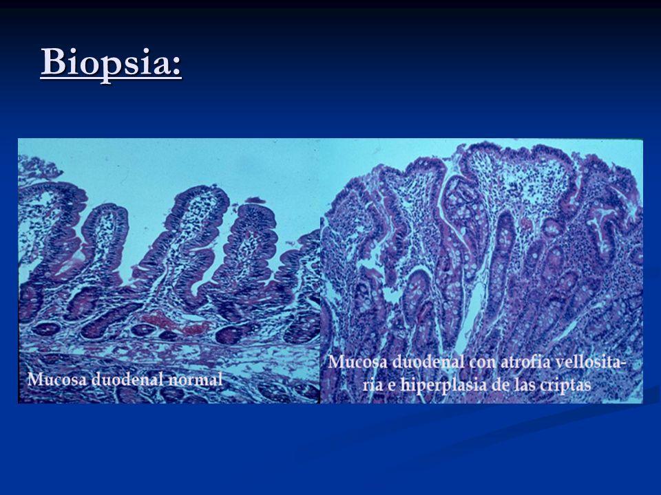 Biopsia: