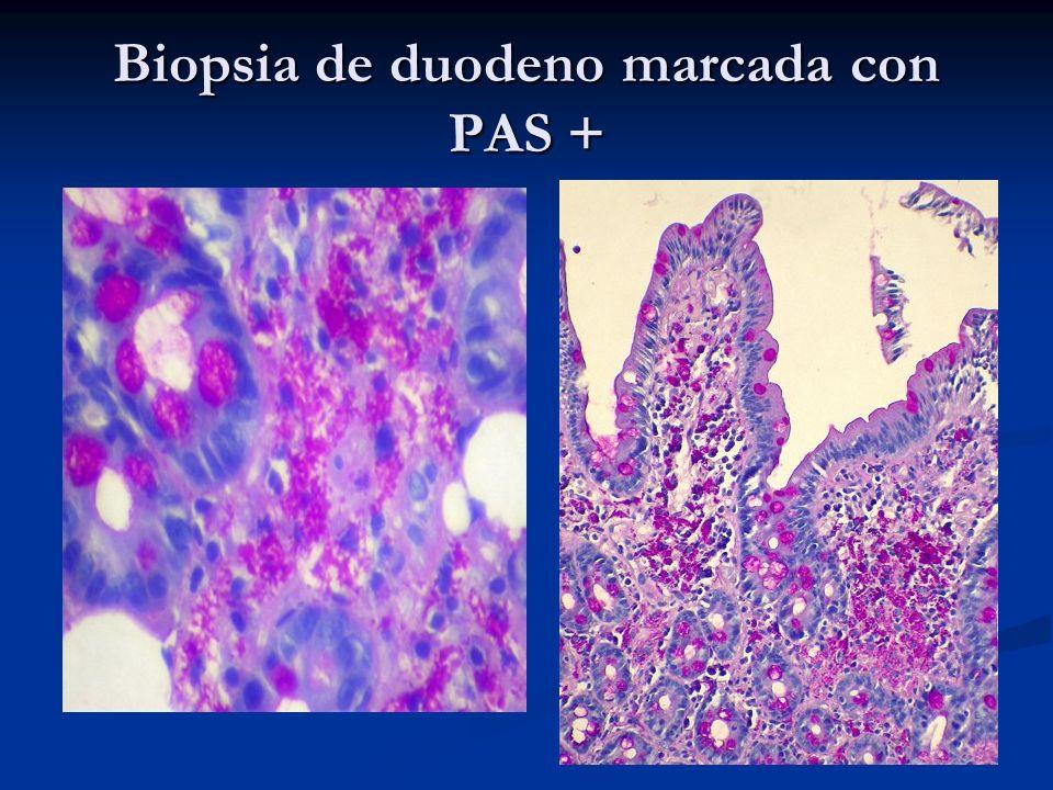 Biopsia de duodeno marcada con PAS +