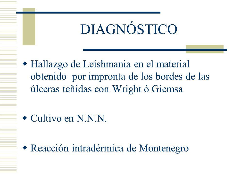 DIAGNÓSTICO Hallazgo de Leishmania en el material obtenido por impronta de los bordes de las úlceras teñidas con Wright ó Giemsa Cultivo en N.N.N.