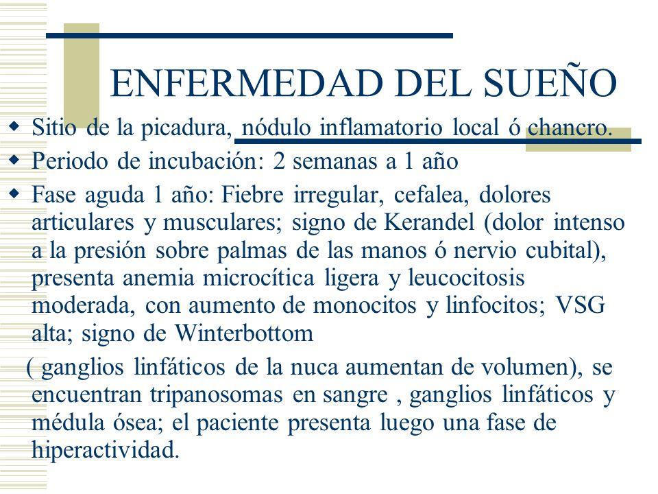 ENFERMEDAD DEL SUEÑO Sitio de la picadura, nódulo inflamatorio local ó chancro.