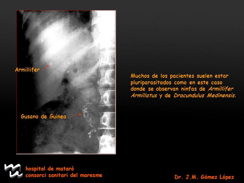 Armillifer Gusano de Guinea Muchos de los pacientes suelen estar pluriparasitados como en este caso donde se observan ninfas de Armillifer Armillatus