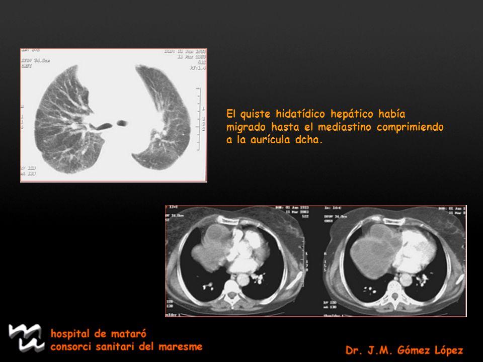 El quiste hidatídico hepático había migrado hasta el mediastino comprimiendo a la aurícula dcha.