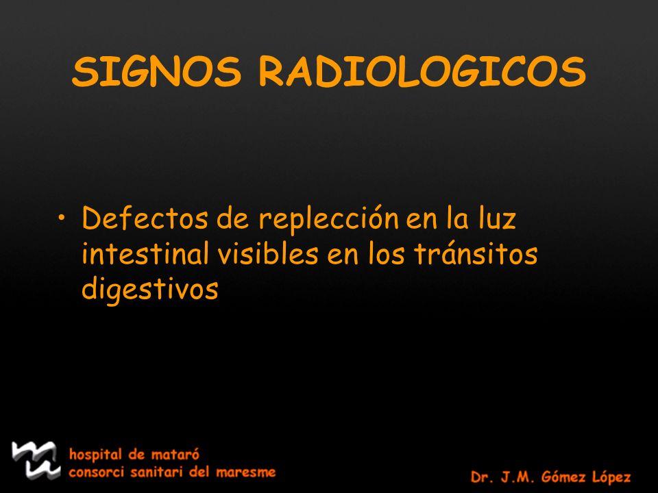 SIGNOS RADIOLOGICOS Defectos de replección en la luz intestinal visibles en los tránsitos digestivos