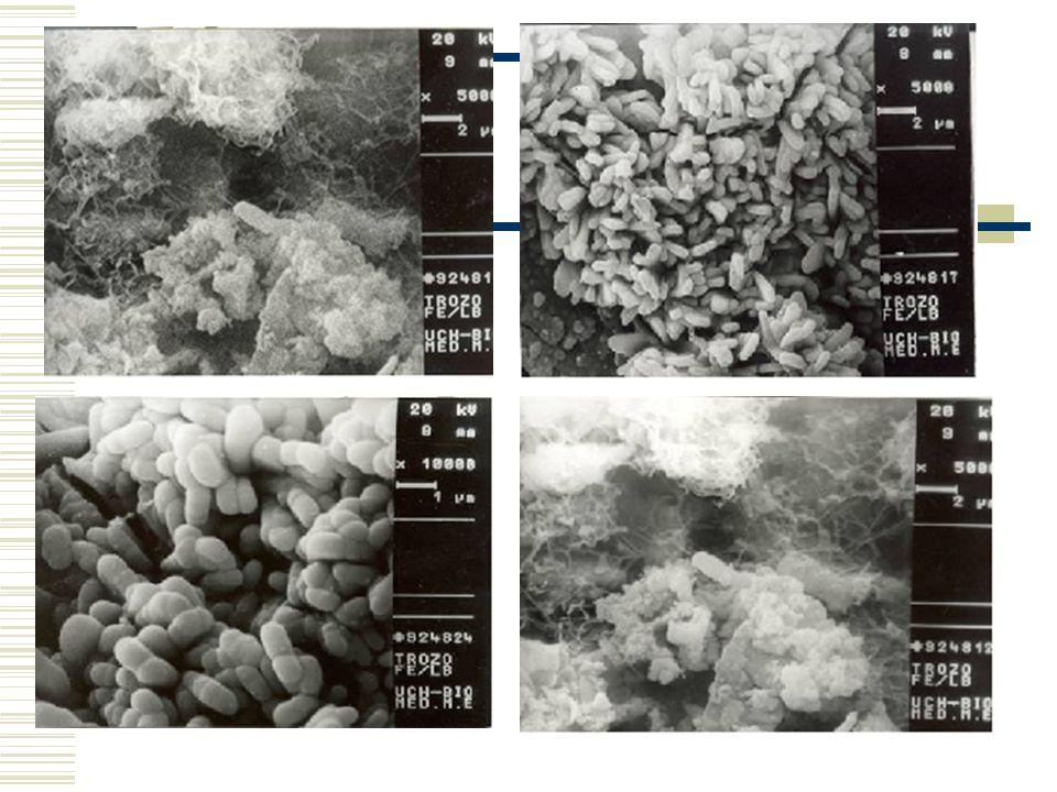 Algunas observaciones microscópicas