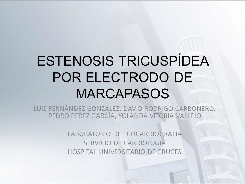 ESTENOSIS TRICUSPÍDEA POR ELECTRODO DE MARCAPASOS LUIS FERNÁNDEZ GONZÁLEZ, DAVID RODRIGO CARBONERO, PEDRO PEREZ GARCÍA, YOLANDA VITORIA VALLEJO LABORA