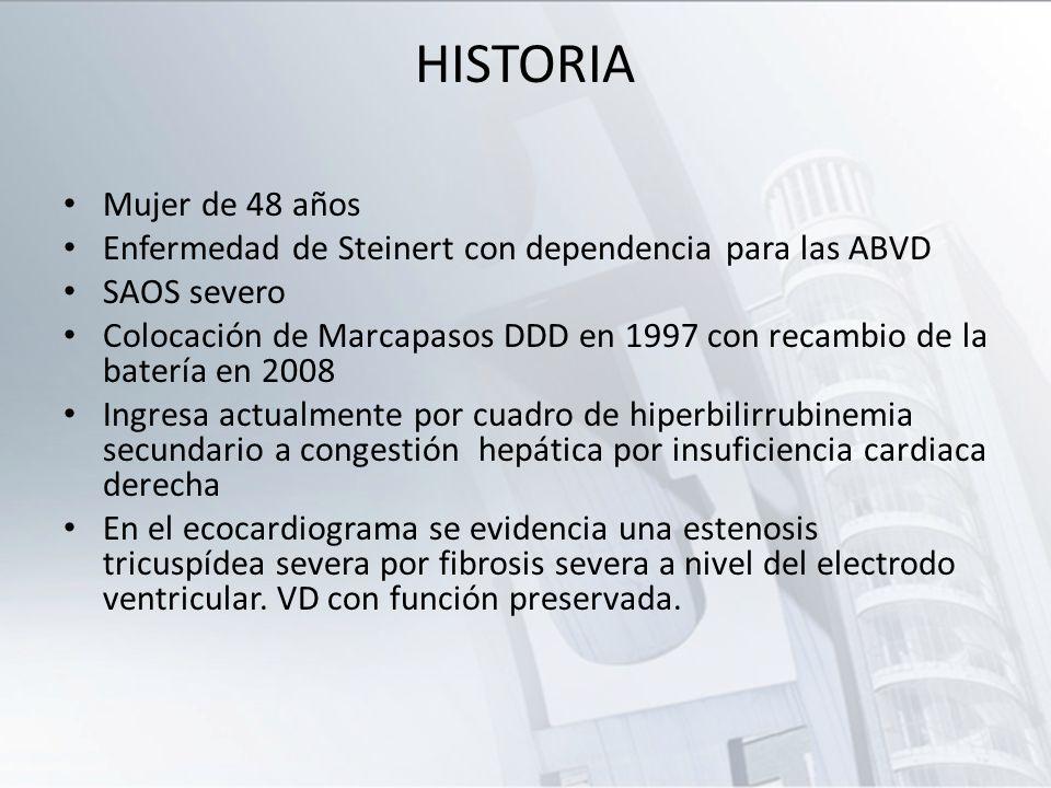 HISTORIA Mujer de 48 años Enfermedad de Steinert con dependencia para las ABVD SAOS severo Colocación de Marcapasos DDD en 1997 con recambio de la bat