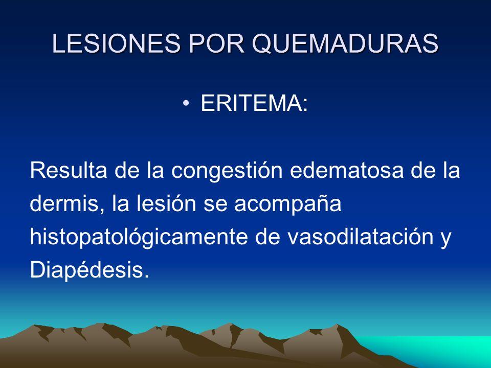 LESIONES POR QUEMADURAS ERITEMA: Resulta de la congestión edematosa de la dermis, la lesión se acompaña histopatológicamente de vasodilatación y Diapé