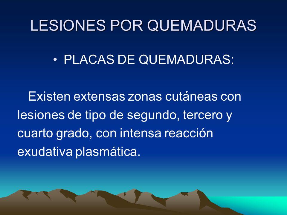 LESIONES POR QUEMADURAS PLACAS DE QUEMADURAS: Existen extensas zonas cutáneas con lesiones de tipo de segundo, tercero y cuarto grado, con intensa rea