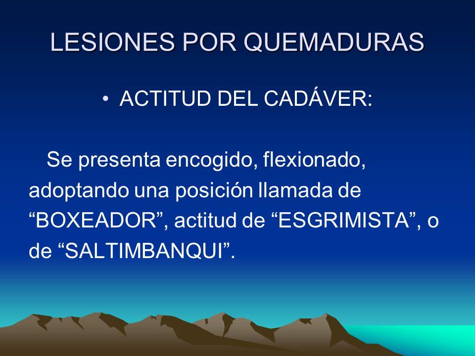 LESIONES POR QUEMADURAS ACTITUD DEL CADÁVER: Se presenta encogido, flexionado, adoptando una posición llamada de BOXEADOR, actitud de ESGRIMISTA, o de