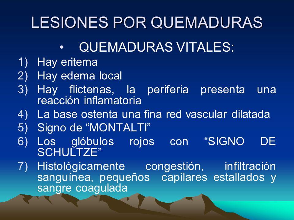 LESIONES POR QUEMADURAS QUEMADURAS VITALES: 1)Hay eritema 2)Hay edema local 3)Hay flictenas, la periferia presenta una reacción inflamatoria 4)La base ostenta una fina red vascular dilatada 5)Signo de MONTALTI 6)Los glóbulos rojos con SIGNO DE SCHULTZE 7)Histológicamente congestión, infiltración sanguínea, pequeños capilares estallados y sangre coagulada