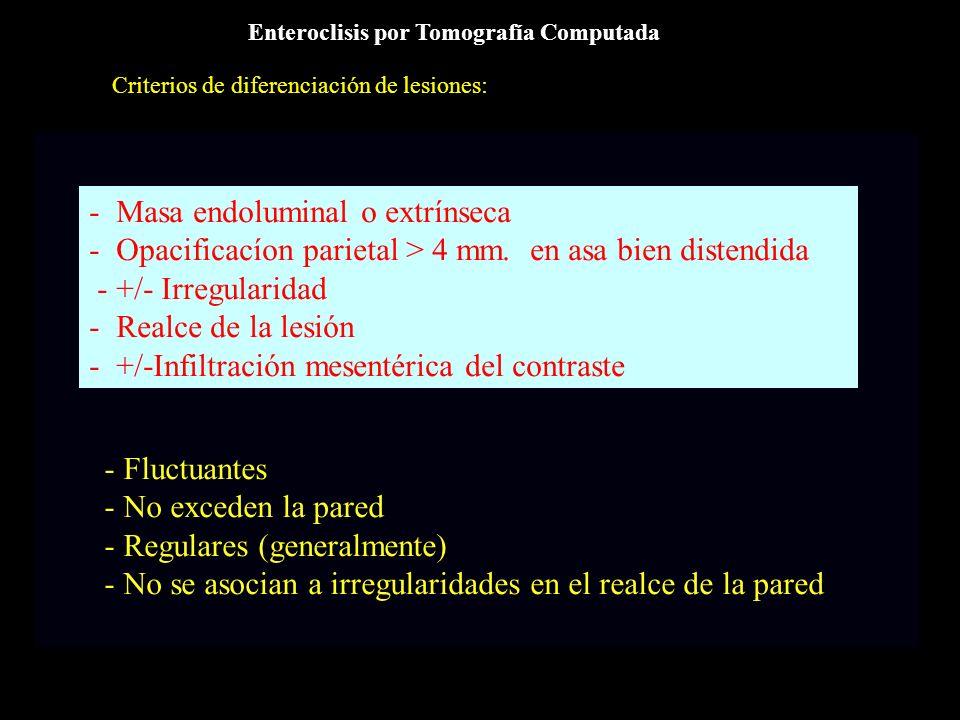 - Masa endoluminal o extrínseca - Opacificacíon parietal > 4 mm. en asa bien distendida - +/- Irregularidad - Realce de la lesión - +/-Infiltración me