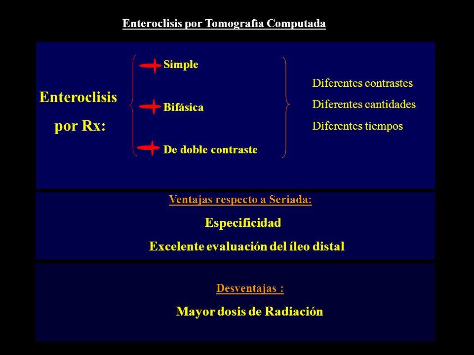 Enteroclisis por Tomografía Computada Enteroclisis por Rx: Simple Bifásica De doble contraste Diferentes contrastes Diferentes cantidades Diferentes t