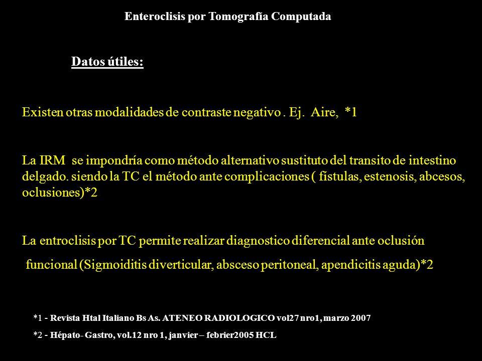 Enteroclisis por Tomografía Computada Datos útiles: Existen otras modalidades de contraste negativo. Ej. Aire, *1 La IRM se impondría como método alte