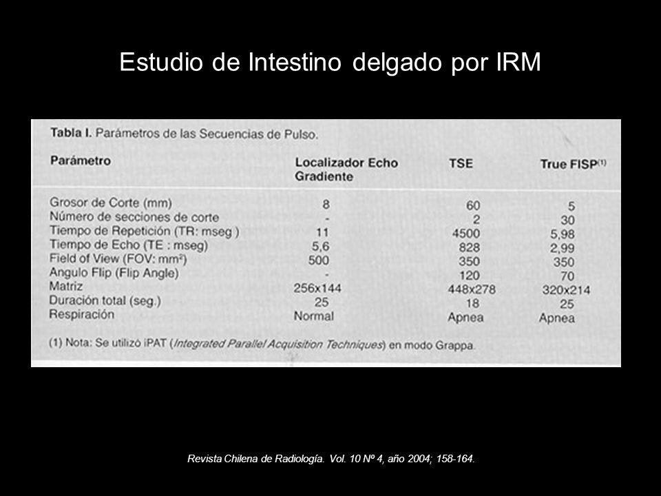 Revista Chilena de Radiología. Vol. 10 Nº 4, año 2004; 158-164. Estudio de Intestino delgado por IRM