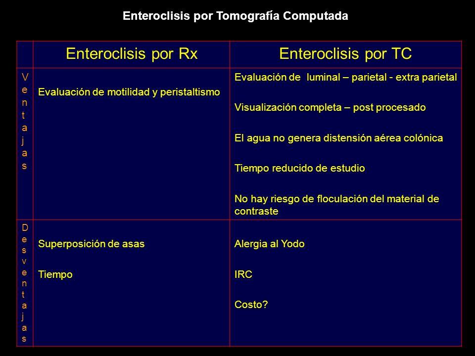 Enteroclisis por Tomografía Computada Enteroclisis por RxEnteroclisis por TC VentajasVentajas Evaluación de motilidad y peristaltismo Evaluación de lu