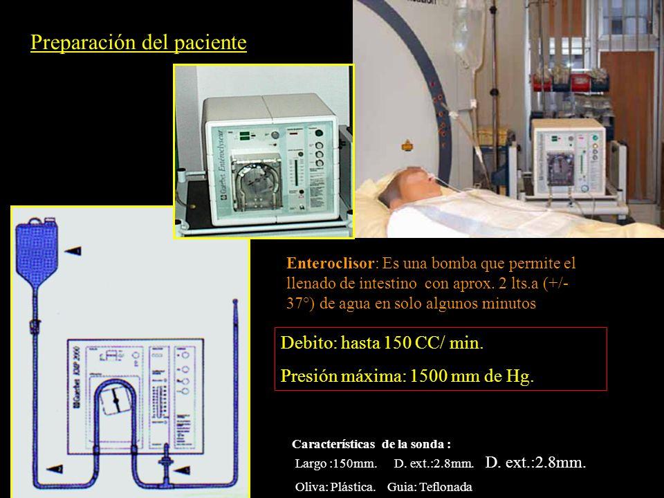 Preparación del paciente Enteroclisor: Es una bomba que permite el llenado de intestino con aprox. 2 lts.a (+/- 37°) de agua en solo algunos minutos C