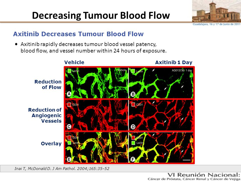 Decreasing Tumour Blood Flow Axitinib rapidly decreases tumour blood vessel patency, blood flow, and vessel number within 24 hours of exposure. Axitin