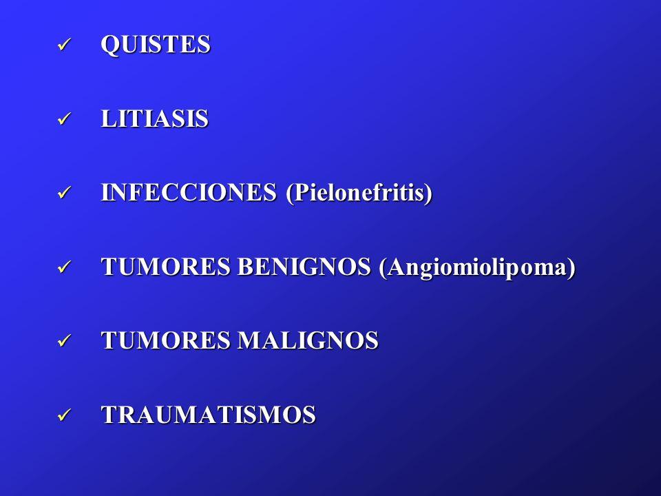 QUISTES QUISTES LITIASIS LITIASIS INFECCIONES (Pielonefritis) INFECCIONES (Pielonefritis) TUMORES BENIGNOS (Angiomiolipoma) TUMORES BENIGNOS (Angiomio