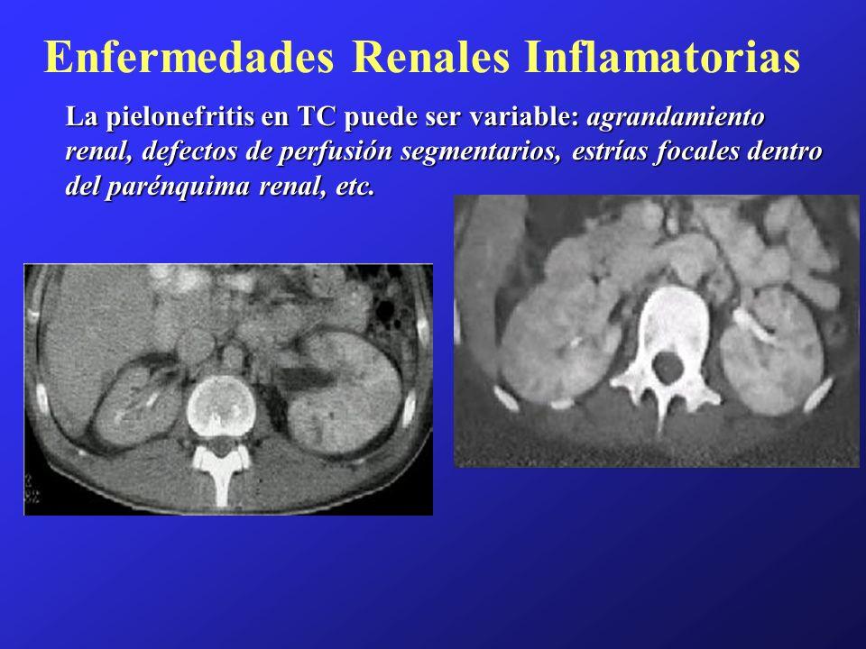 Enfermedades Renales Inflamatorias La pielonefritis en TC puede ser variable: agrandamiento renal, defectos de perfusión segmentarios, estrías focales