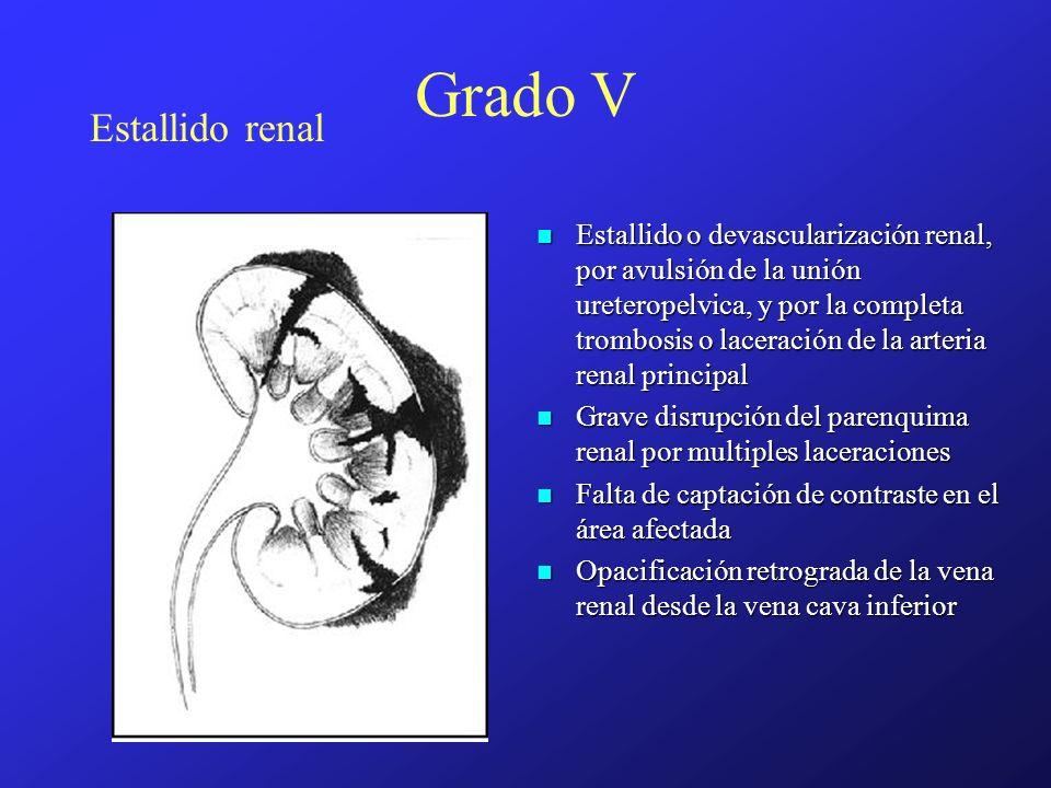 Estallido renal Grado V Estallido o devascularización renal, por avulsión de la unión ureteropelvica, y por la completa trombosis o laceración de la a