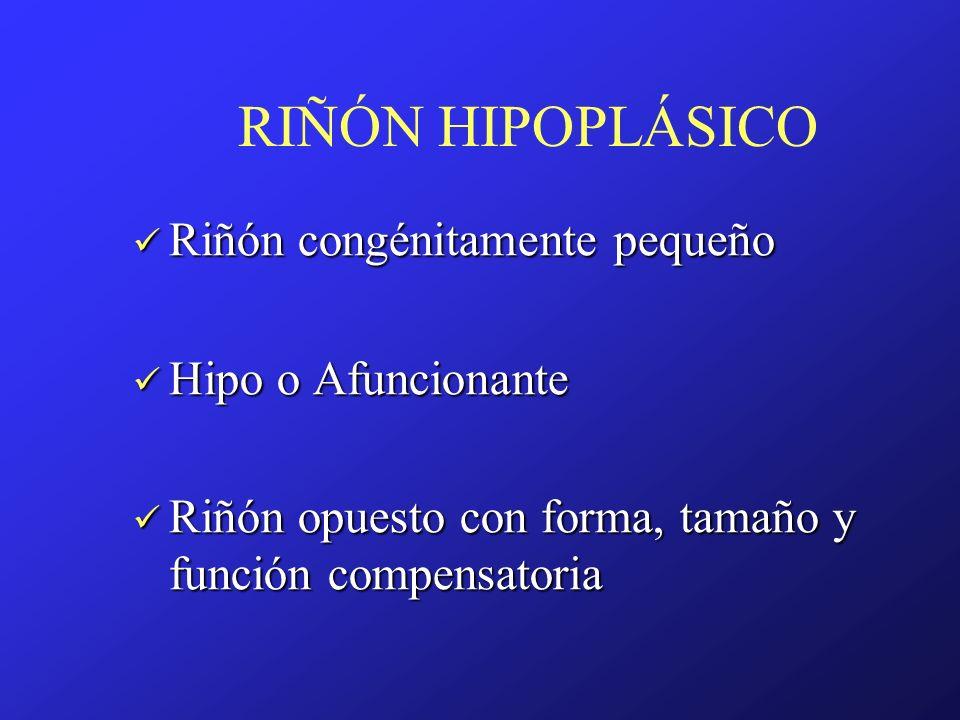 RIÑÓN HIPOPLÁSICO Riñón congénitamente pequeño Riñón congénitamente pequeño Hipo o Afuncionante Hipo o Afuncionante Riñón opuesto con forma, tamaño y