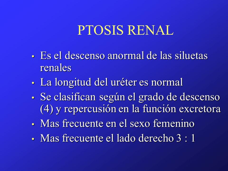 PTOSIS RENAL Es el descenso anormal de las siluetas renales Es el descenso anormal de las siluetas renales La longitud del uréter es normal La longitu