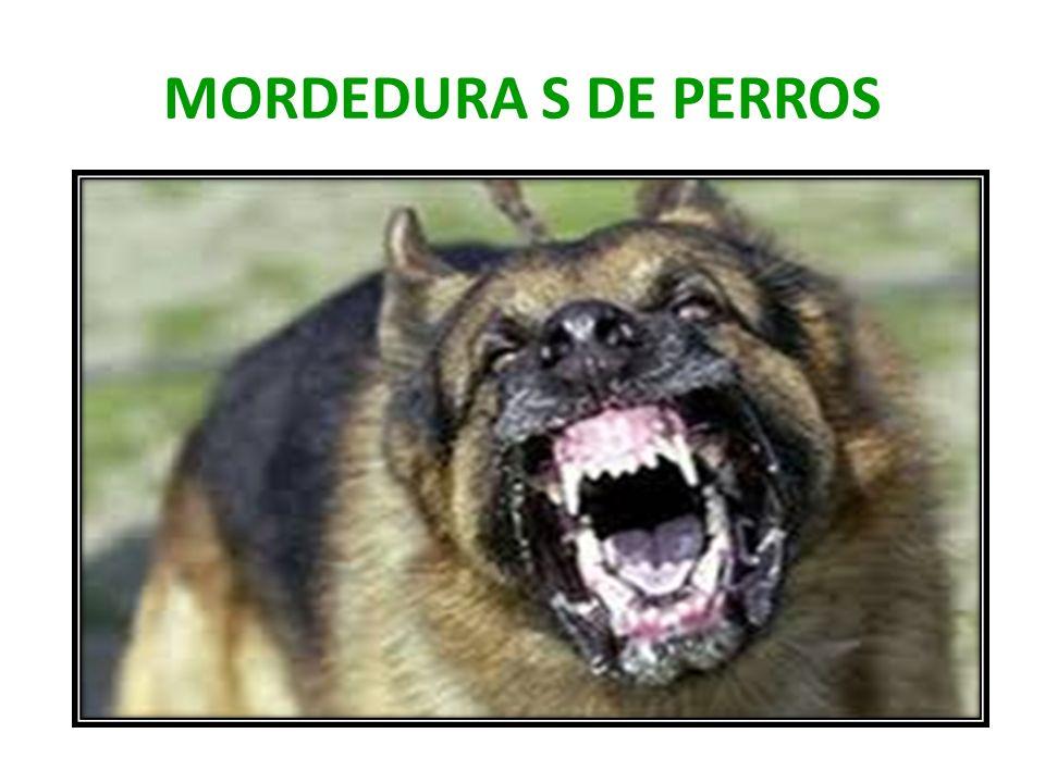 MORDEDURA S DE PERROS