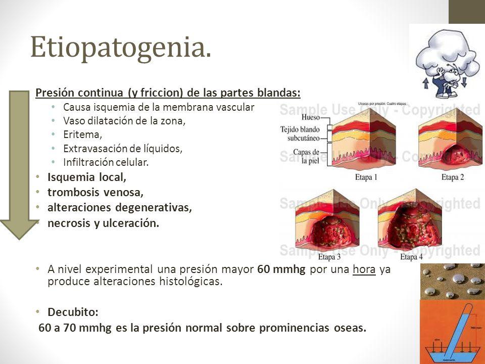 Etiopatogenia. Presión continua (y friccion) de las partes blandas: Causa isquemia de la membrana vascular Vaso dilatación de la zona, Eritema, Extrav
